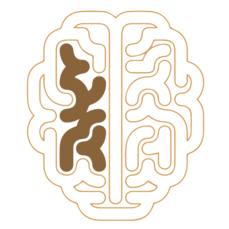 A diagram of a 60 year old brain is pictured, with the damage and toxin buildup having intensified.