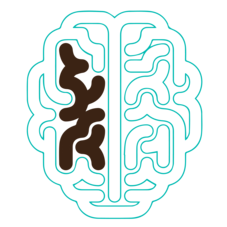 A diagram of a 60 year old brain is pictured, with the damage and toxin buildup having intensified. In your 60's your brain can no longer protect itself against damage and toxin build up. The‍‍‍ negative effects will continue to intensify from this point on.