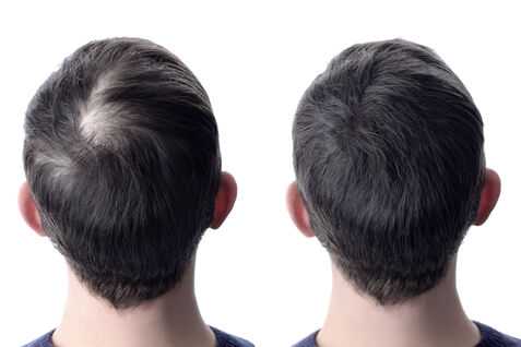 A before and after photo of hair restoration.